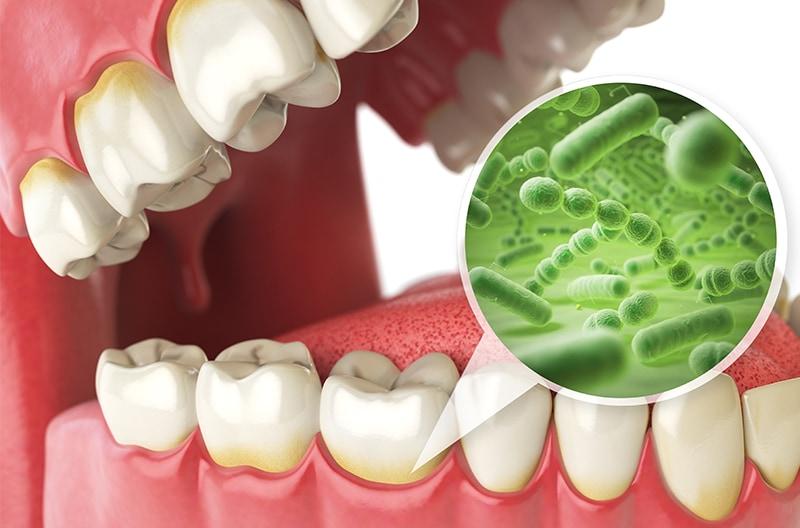 蛀牙原因-牙齒痛原因-預防蛀牙-蛀牙治療-台中朗日牙醫