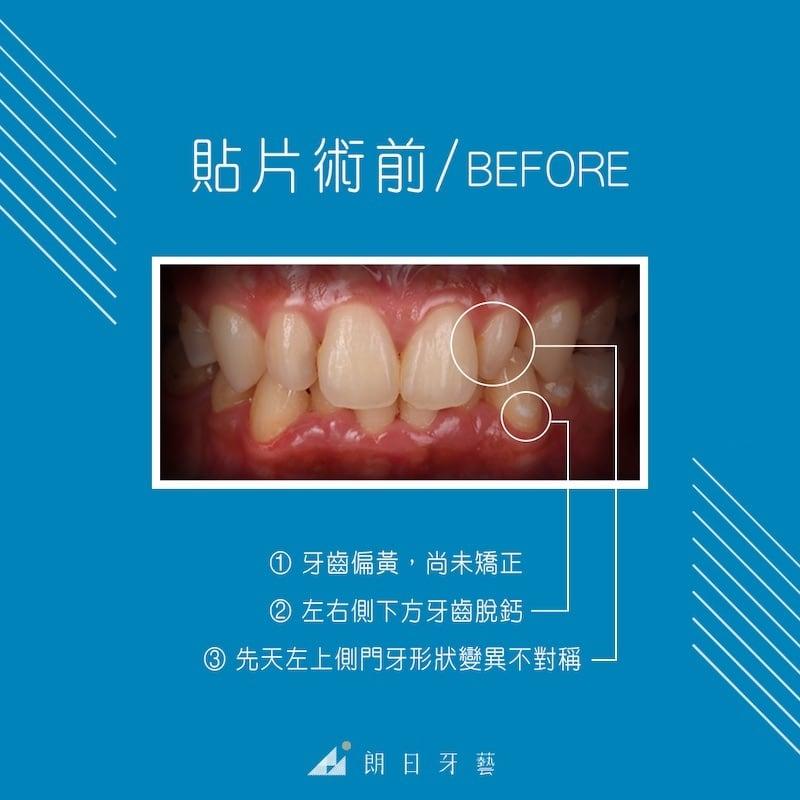陶瓷貼片-推薦-台中-朗日牙藝-輕瓷美白貼片-Doreen-術前-牙齒黃-門牙不整