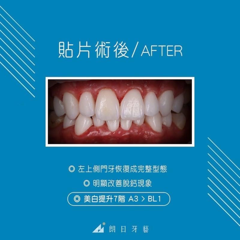 陶瓷貼片-推薦-台中-朗日牙藝-輕瓷美白貼片-Doreen-術後-改善脫鈣-牙齒美白7階