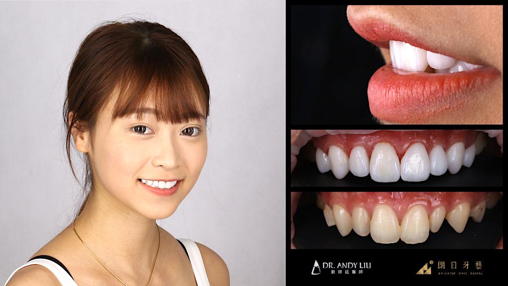 陶瓷貼片-推薦-台中-朗日牙藝-輕瓷美白貼片-Doreen-DSD數位微笑設計
