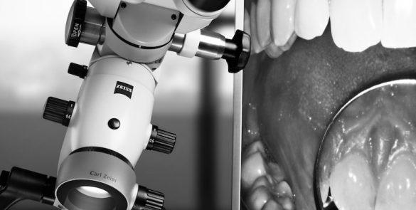 顯微鏡-微創-牙醫-陶瓷貼片-朗日牙藝-台中牙齒美白貼片