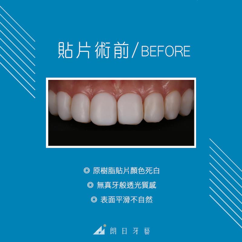 樹脂貼片-陶瓷貼片-台中牙齒美白-推薦-朗日牙藝-原本的樹脂貼片死白不自然