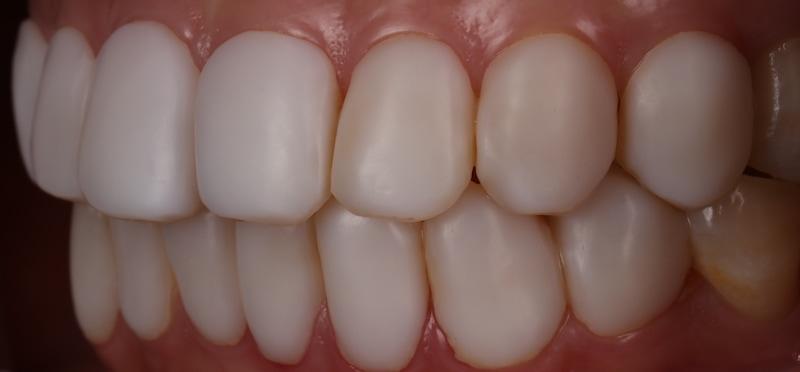 樹脂貼片-陶瓷貼片-台中牙齒美白-推薦-朗日牙藝-原本的樹脂貼片