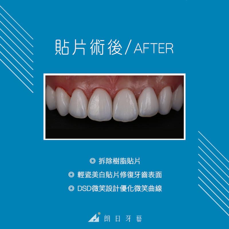 樹脂貼片-陶瓷貼片-台中牙齒美白-推薦-朗日牙藝-換上陶瓷貼片後-牙齒亮白表面有自然紋理