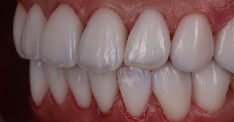 樹脂貼片-陶瓷貼片-台中牙齒美白-推薦-朗日牙藝-更換後的陶瓷貼片