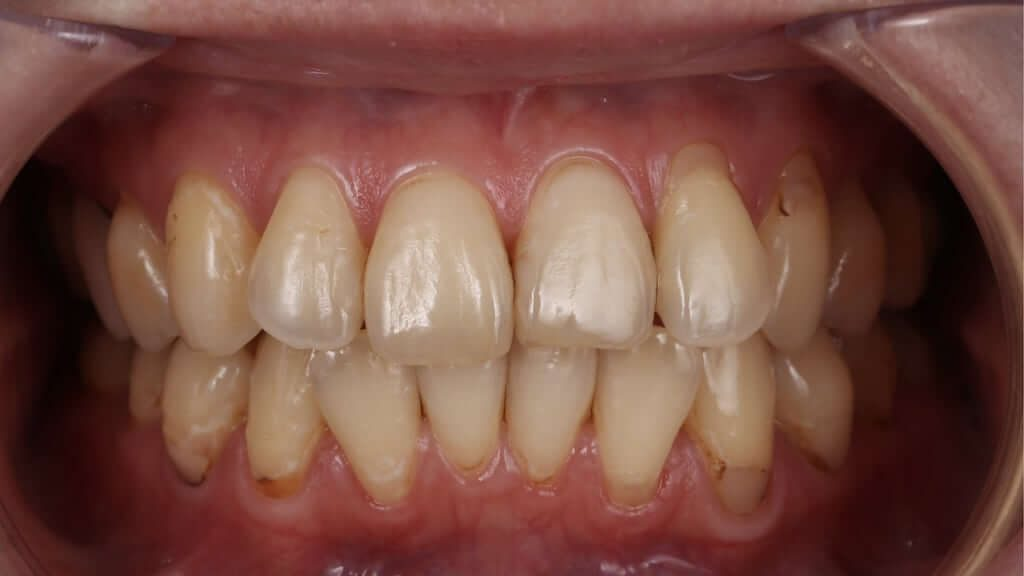 牙齒黃齒列不正免矯正-台中牙齒美白推薦-朗日牙醫-一日美齒-林小姐陶瓷貼片加DSD數位微笑修復推薦心得-術前有牙齒偏黃與門牙不一問題