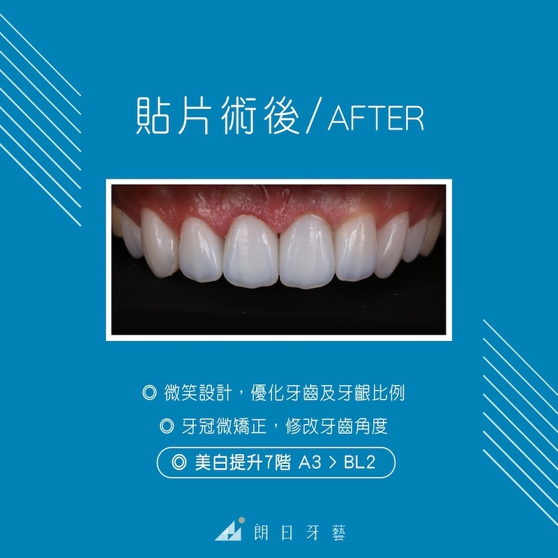 瓷牙貼片-推薦-台中朗日牙藝-dsd數位微笑設計-香港新娘-輕瓷美白貼片一天優化牙齒比例-牙齒美白提升七階