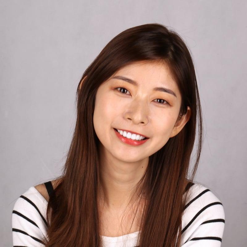 瓷牙貼片-推薦-台中朗日牙藝-dsd數位微笑設計-香港新娘-輕瓷美白貼片一天讓她成為最美新娘-術後笑容