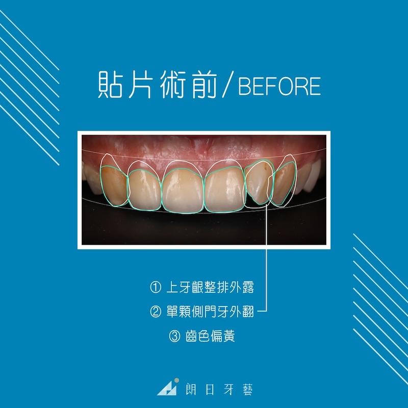 瓷牙貼片-推薦-台中朗日牙藝-dsd數位微笑設計-香港新娘-輕瓷美白貼片前牙齒黃與牙齦外露-門牙外翻