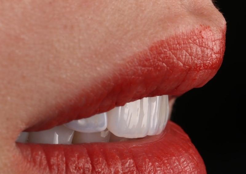 陶瓷貼片-推薦-台中-朗日牙藝-輕瓷美白貼片-陶瓷貼片表面有如真牙般的細節