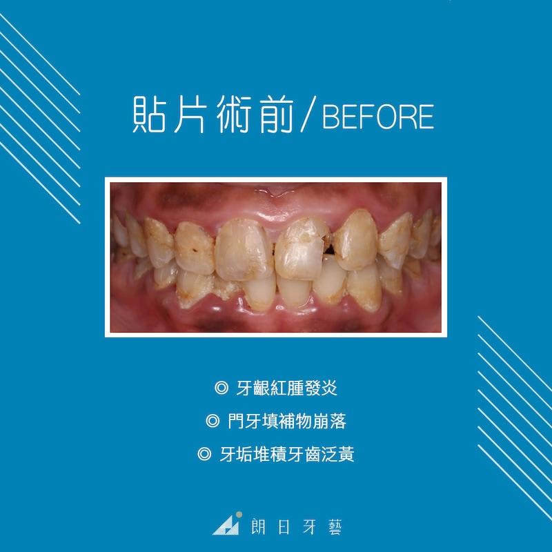 陶瓷貼片-牙齦發炎-牙菌斑-牙周病-台中-朗日牙藝-陶瓷貼片前Bonnie牙齦炎紅腫-牙垢與牙菌斑需先處理