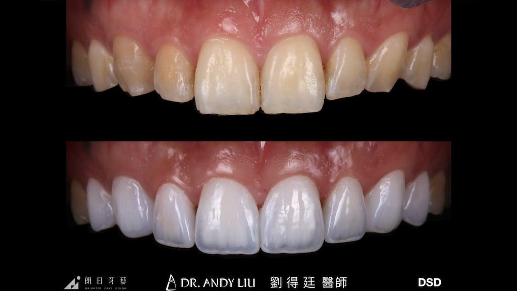 陶瓷貼片-DSD數位微笑設計-推薦-台中朗日牙藝牙醫診所-一日美齒-機師朱先生-上排牙齒正面比較