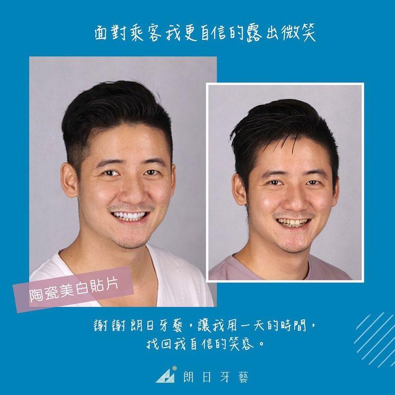 陶瓷貼片-DSD數位微笑設計-推薦-台中朗日牙藝牙醫診所-一日美齒-機師朱先生
