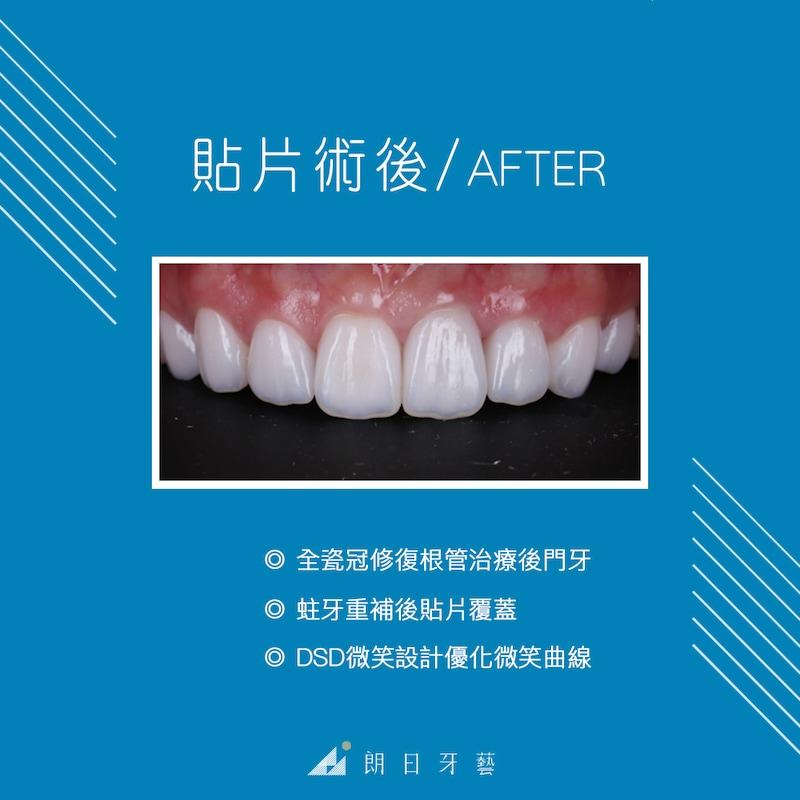陶瓷貼片-推薦-台中牙醫診所-朗日牙藝-DSD數位微笑設計-全瓷冠-台北MS朱-全瓷冠修復根管治療的門牙-瓷牙貼片修復蛀牙