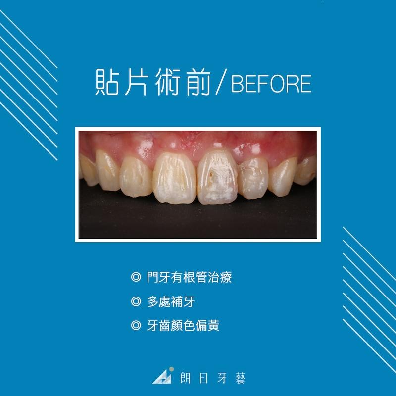 陶瓷貼片-推薦-台中牙醫診所-朗日牙藝-DSD數位微笑設計-全瓷冠-台北MS朱-療程前門牙根管治療後變色-牙齒黃-補牙
