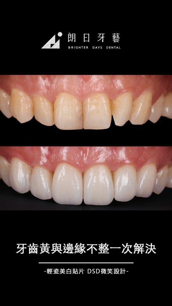 陶瓷貼片-牙齒黃-門牙貼片-推薦-台中-朗日牙藝-輕瓷美白貼片-邱小姐