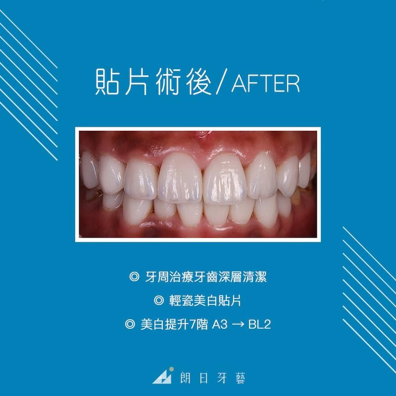 陶瓷貼片-牙齦發炎-牙菌斑-牙周病-台中牙醫推薦-朗日牙藝-陶瓷貼片療程包含牙周治療回復健康牙齦-牙齒貼片-美白提升7階