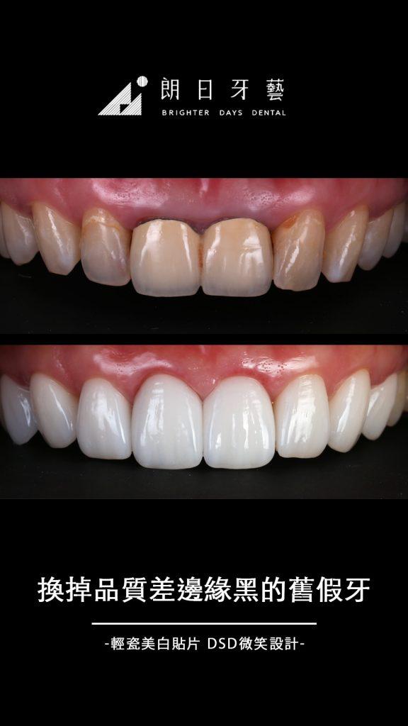 陶瓷貼片-門牙假牙-牙齒黃-牙齒美白推薦-台中朗日牙藝-輕瓷美白貼片-李小姐