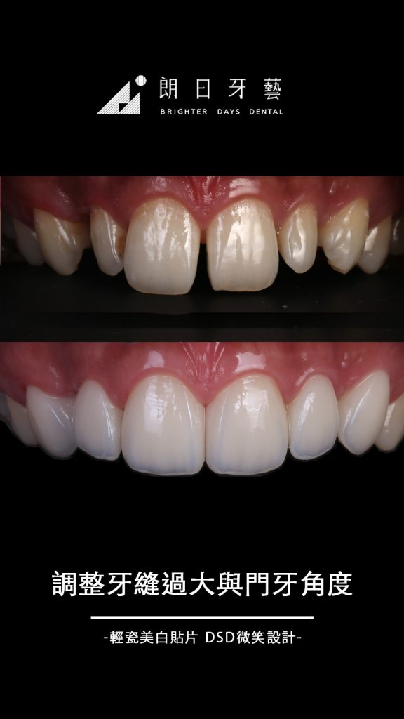 陶瓷貼片-門牙牙縫大-門牙貼片-推薦-台中-朗日牙藝-輕瓷美白貼片-袁