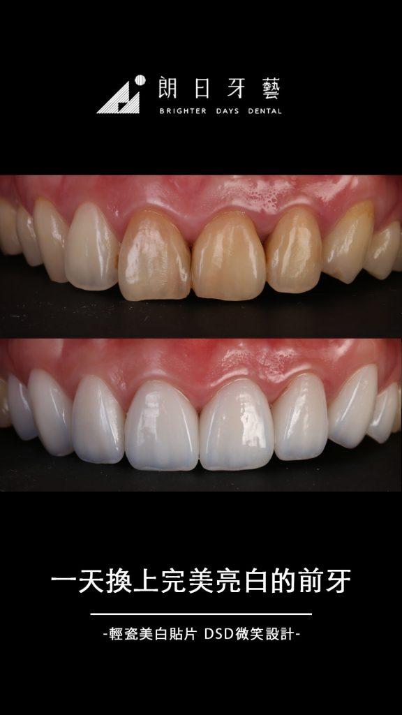 陶瓷貼片-門牙貼片-牙齒黃-牙齒微整型-推薦-台中朗日牙藝-輕瓷美白貼片-雲小姐