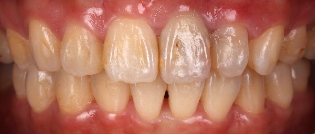 陶瓷貼片-推薦-台中牙醫診所-朗日牙藝-DSD數位微笑設計-台北MS朱-療程前門牙根管治療-牙齒黃-補牙-牙齒正面照