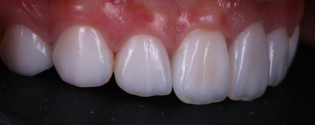 陶瓷貼片-推薦-台中-朗日牙藝-DSD數位微笑設計-全瓷冠-台北MS朱-牙齒美白貼片療程後-右側面照