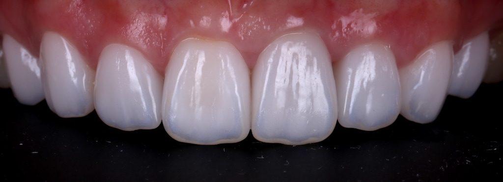 陶瓷貼片-推薦-台中-朗日牙藝-DSD數位微笑設計-全瓷冠-台北MS朱-牙齒美白貼片療程後-正面照