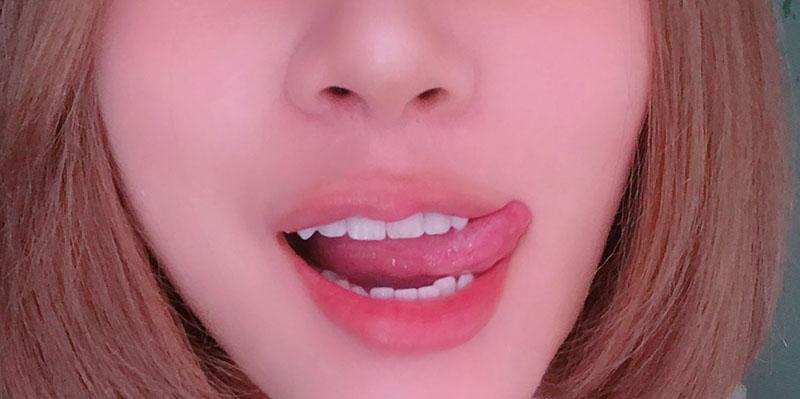 瓷牙貼片-DSD數位微笑設計-牙齒顏色不均-門牙斷裂-牙周治療-台中牙齒美白-朗日牙藝-術後笑容近照