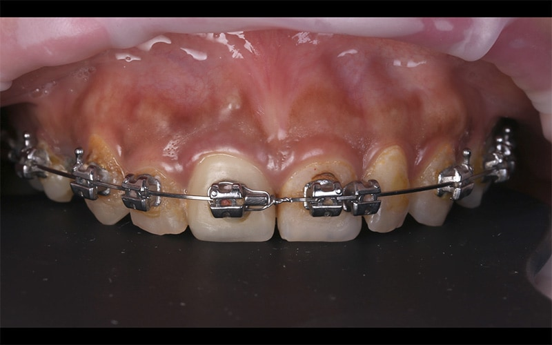 戴牙套矯正後的牙齒-牙齒黃-門牙有縫-牙齒長度不一