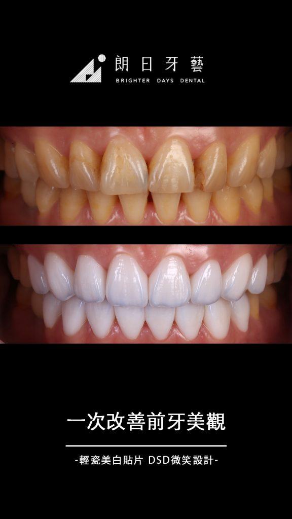 陶瓷貼片-牙齒黃-關牙縫-牙齒美白推薦-台中-朗日牙藝-輕瓷美白貼片