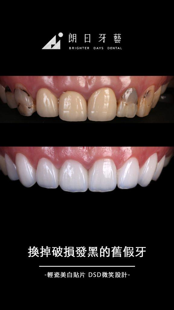 陶瓷貼片案例-換掉破損發黑的舊假牙-牙齒美白推薦-台中朗日牙藝-輕瓷美白貼片