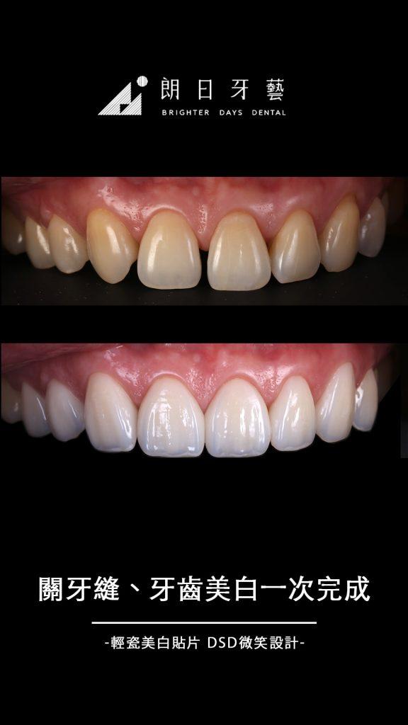 陶瓷貼片案例-門牙牙縫大-牙齒美白-台中-朗日牙藝-輕瓷美白貼片
