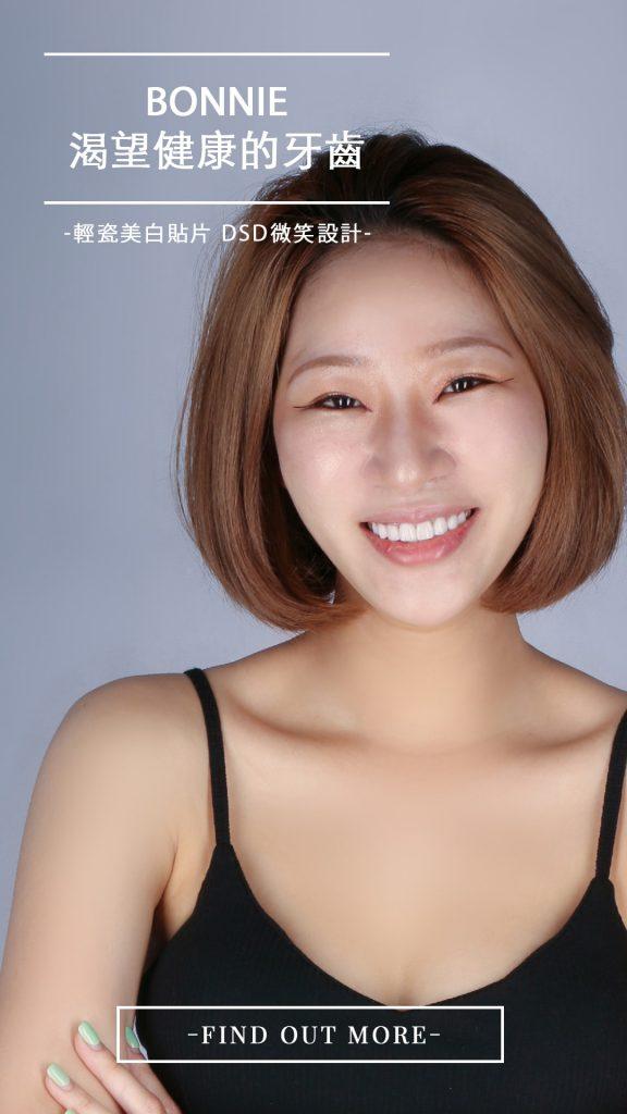 陶瓷貼片案例-陶瓷貼片解決Bonnie牙齦發炎與牙周病問題-還她健康又美觀的牙齒-台中朗日牙藝推薦