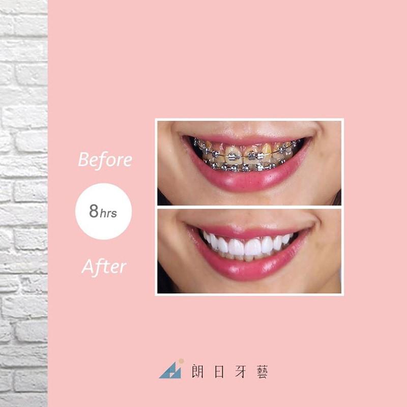 陶瓷貼片-輕瓷美白貼片-一日美齒-台中牙齒美白推薦-朗日牙藝