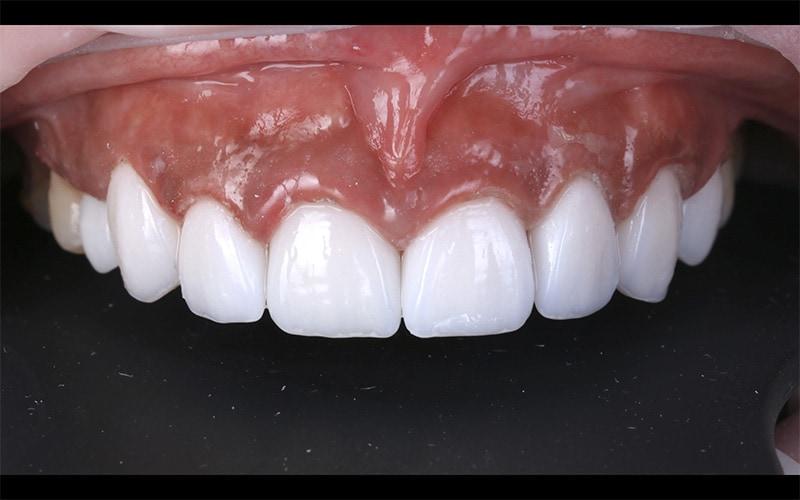 陶瓷貼片-DSD數位微笑設計-牙齒美白