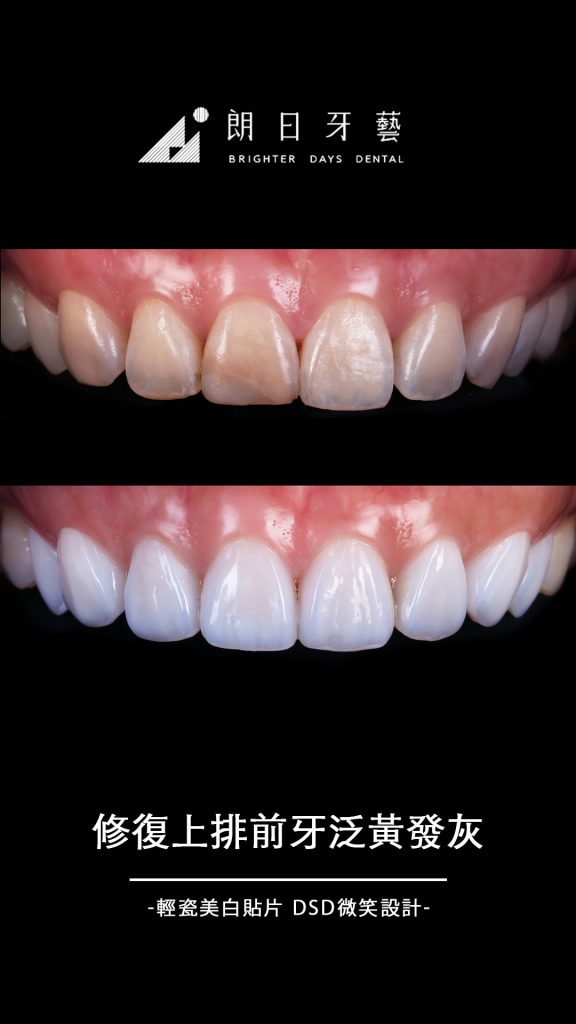 陶瓷貼片-牙齒黃-門牙貼片-門牙裂痕-台中-朗日牙藝-推薦-輕瓷美白貼片