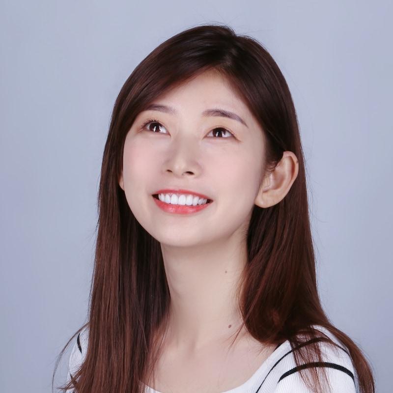 陶瓷貼片-輕瓷美白貼片-DSD數位微笑設計-案例-台中朗日牙藝-香港新娘的術後笑容更完美了