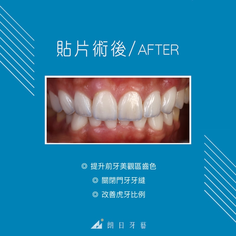 牙齒美白-關牙縫-一日美齒-DSD數位微笑設計-台中陶瓷貼片-推薦-朗日牙藝