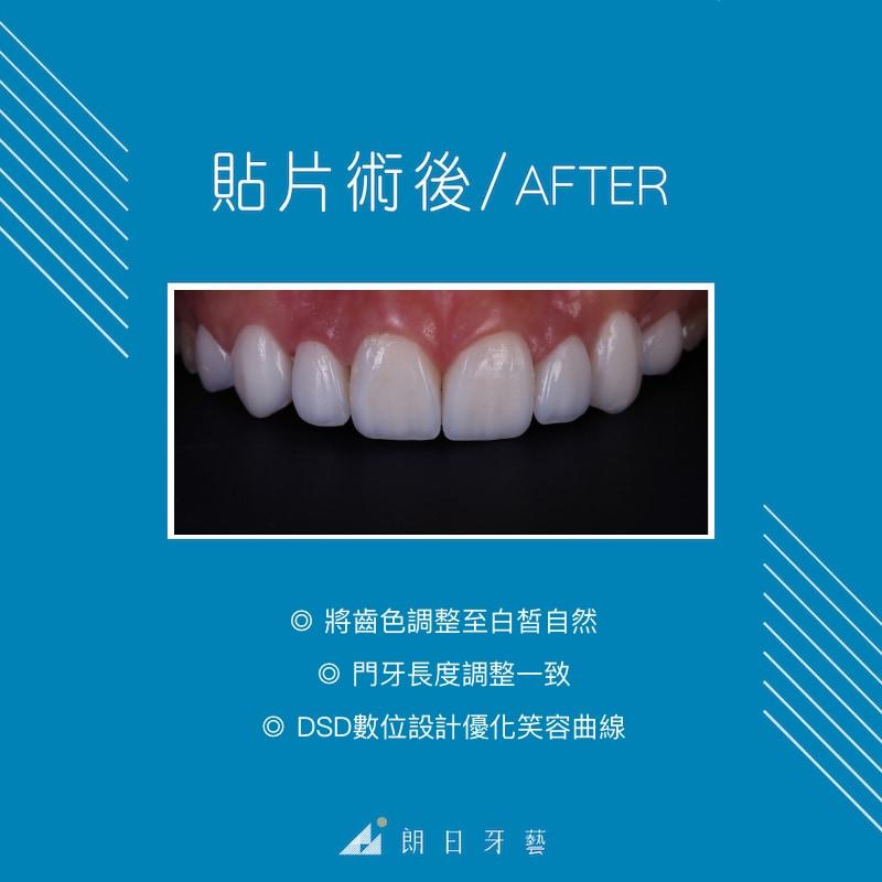 牙齒美白-DSD數位微笑設計-一日美齒-推薦-台中-朗日牙藝
