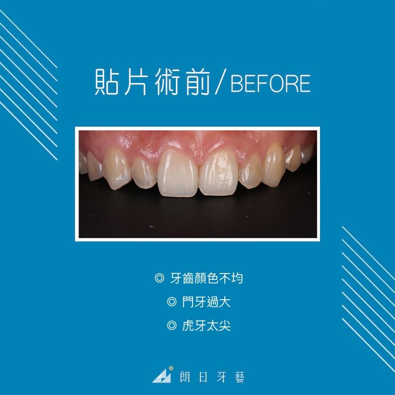 牙齒顏色不均-牙齒形狀不好看-虎牙尖-牙齒微矯正-台中陶瓷貼片-推薦-朗日牙藝