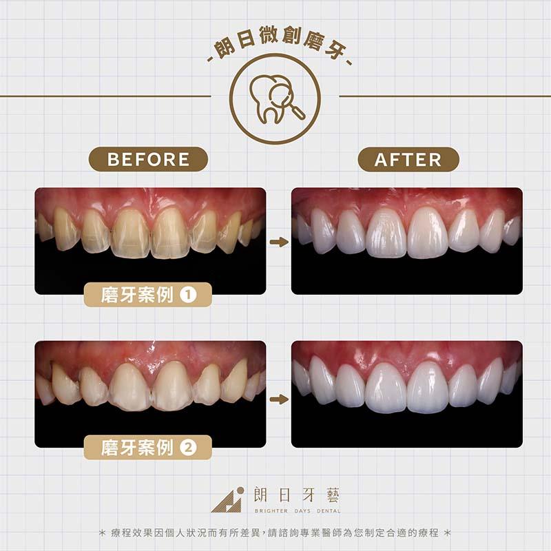 陶瓷貼片壽命-關鍵-微創磨牙-陶瓷貼片-案例-顯微微創磨牙治療前後比較圖-台中-朗日牙醫