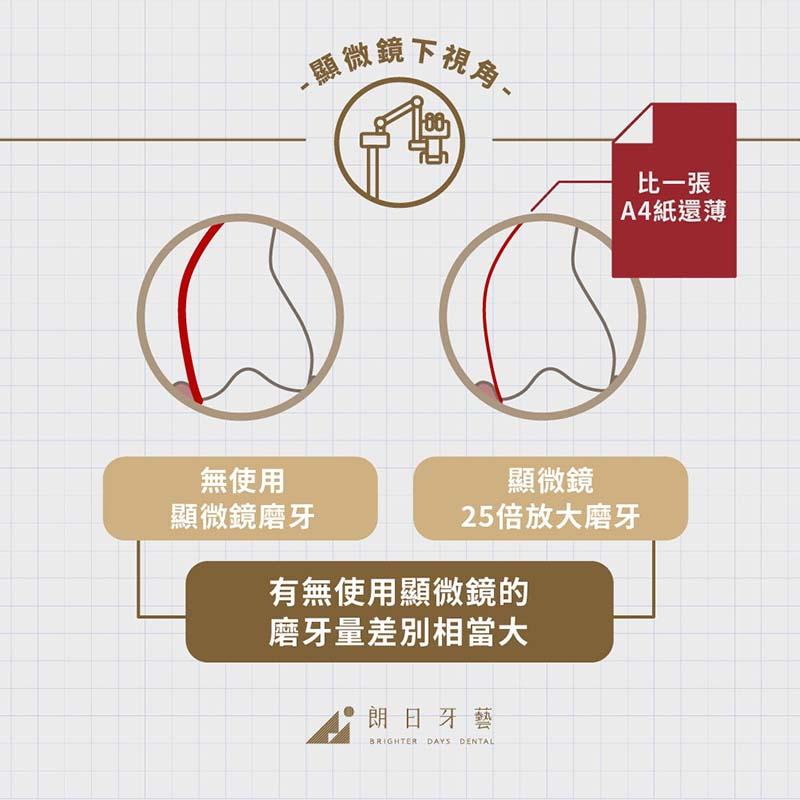 陶瓷貼片壽命-關鍵-有無使用顯微鏡磨牙-牙科顯微鏡視角-磨牙量差別比較圖-台中-朗日牙醫