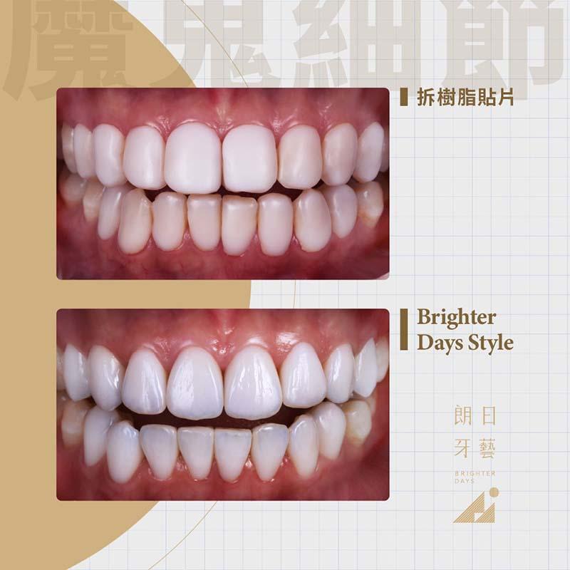 陶瓷貼片-案例-陶瓷貼片後遺症-樹脂貼片-後悔-拆除更換瓷牙貼片-台中-朗日牙醫