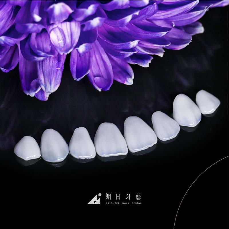 高品質陶瓷貼片-朗日牙藝-輕瓷美白貼片-台中陶瓷貼片-推薦-朗日牙醫