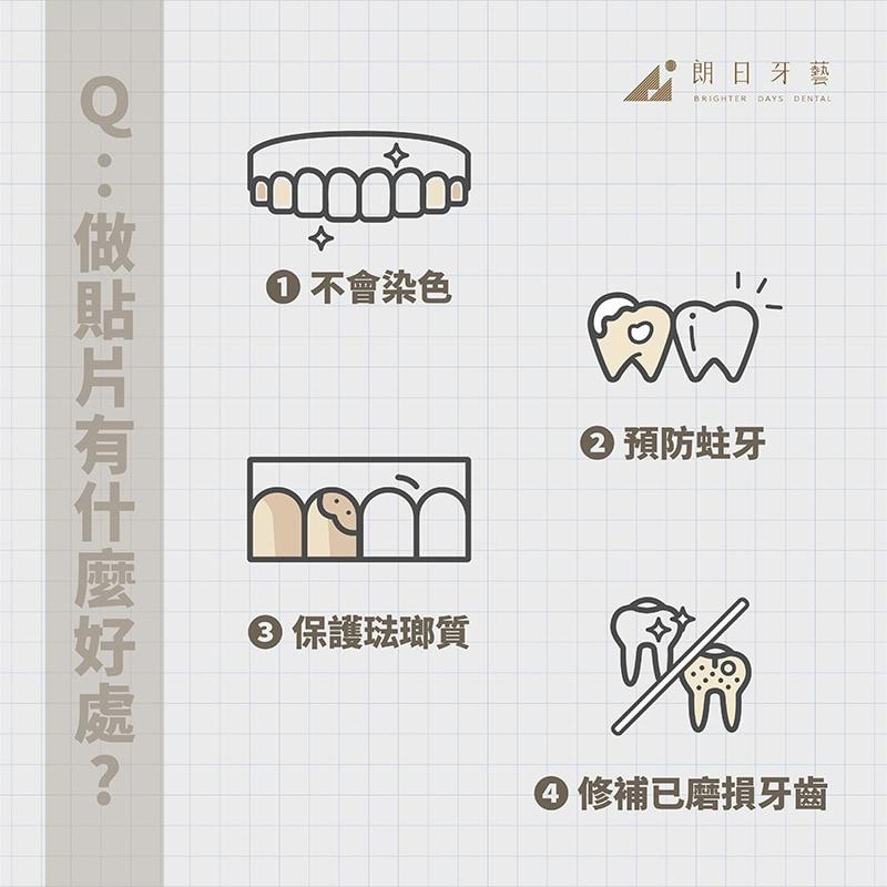 全瓷貼片-陶瓷貼片優點-台中瓷牙貼片-推薦-朗日牙藝