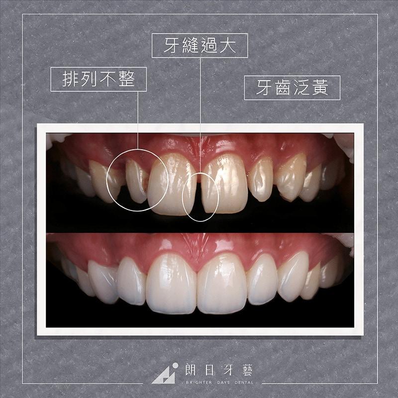 台中陶瓷貼片-輕瓷美白貼片-推薦案例-牙縫大-牙齒黃-牙齒不整齊