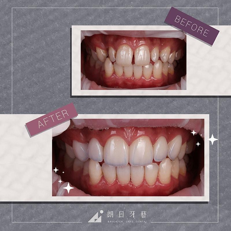台中陶瓷貼片-輕瓷美白貼片-推薦案例-牙齒美白