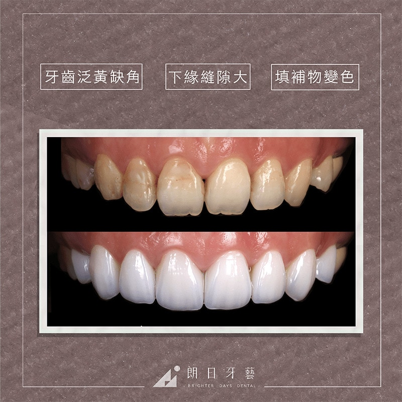 台中陶瓷貼片-輕瓷美白貼片-推薦案例-牙齒黃-牙齒缺角-補牙變色