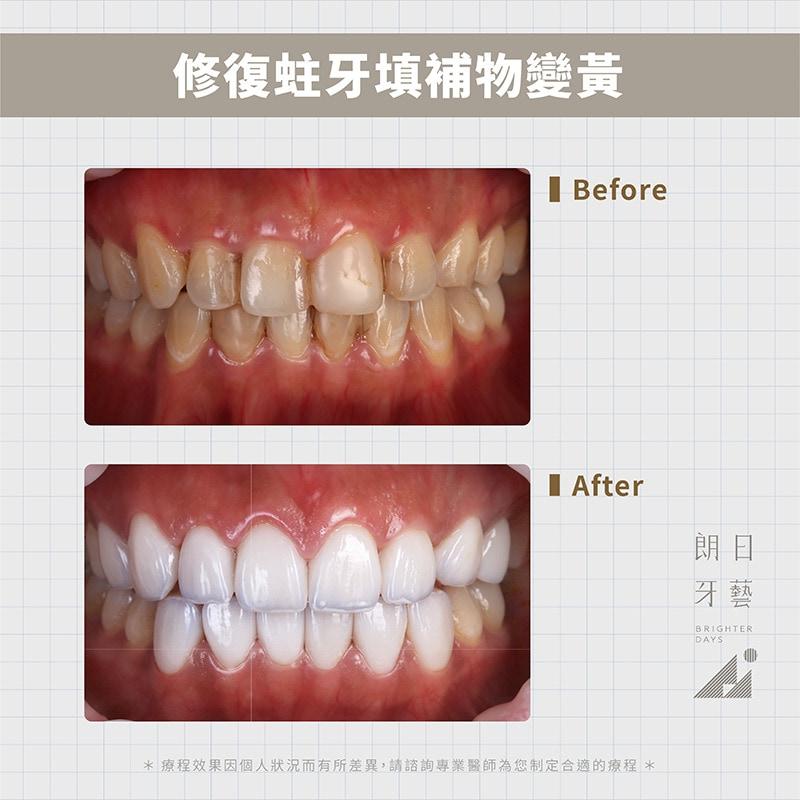 陶瓷貼片優點-修復補牙樹脂變色-台中牙齒美白-推薦-朗日牙藝