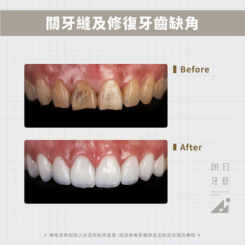 陶瓷貼片-修復牙縫大-牙齒缺角-台中陶瓷貼片-朗日牙藝